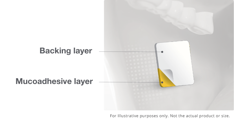 image of the backing layer and mucoadhesive layers of a the Belbuca buccal film